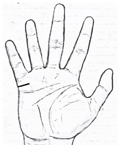 deep marriage line in palmistry