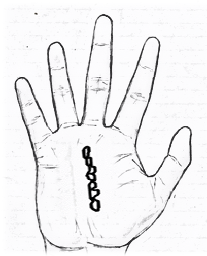 Chained line in palmistry