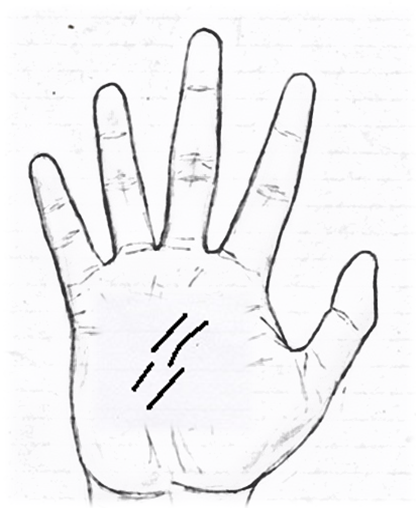 Breaks on the line in palmistry