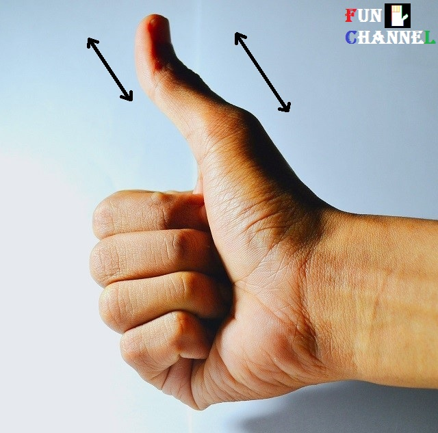 Second phalange of the thumb is greater than the first phalange of the thumb
