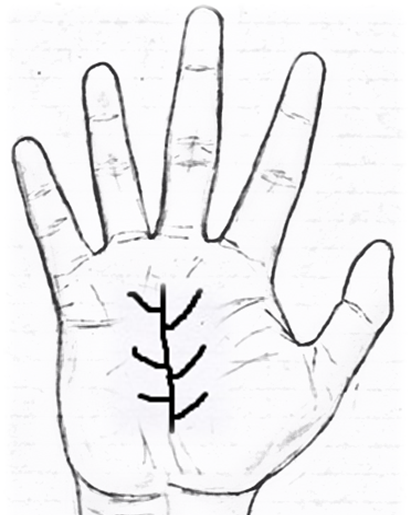Tree Sign in palmistry