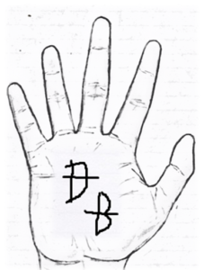 Bow sign in palmistry