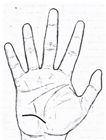 Addiction lines/Via Lascivia in palmistry