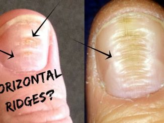 Horizontal Ridges on nails
