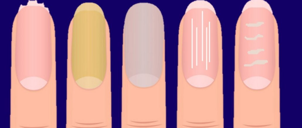nails tells a lot about your health