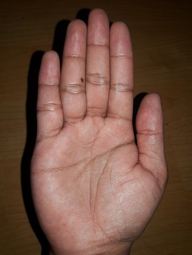 struggles and financial problem signs in palmistry